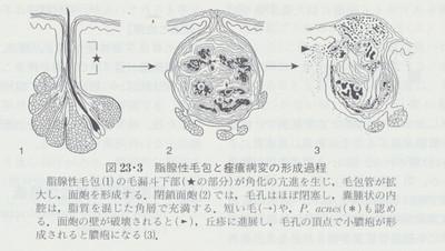 Menpohimg
