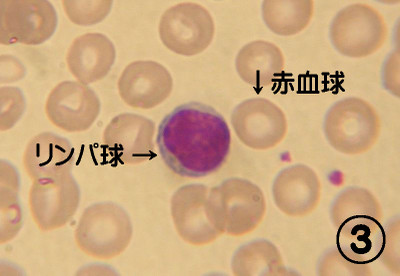 800pxlymphocyte2